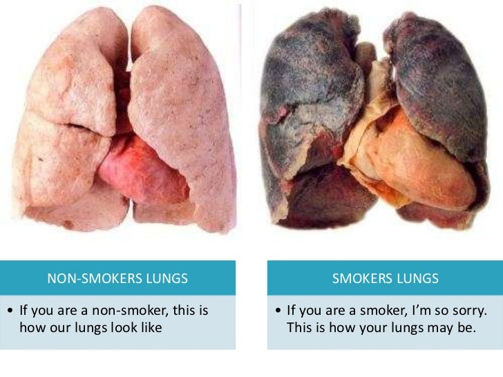Inclinações e luta contra fumagem
