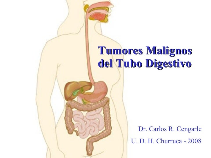 Tumores Malignos del Tubo Digestivo Dr. Carlos R. Cengarle U. D. H. Churruca - 2008