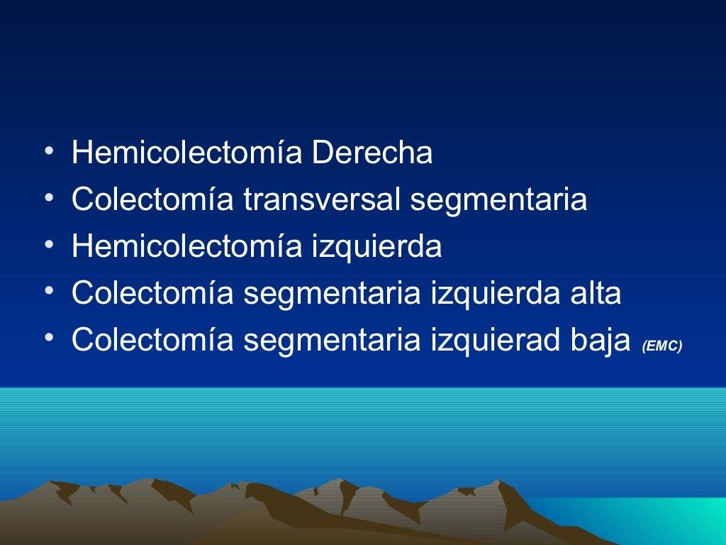 Cirugia del cáncer de colon y recto