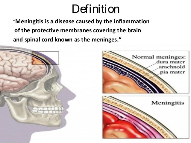 spinal meningitis Viral and bacterial meningitis is the inflammation of the meninges, the tissues and fluid covering the brain and spinal cord meningitis is.