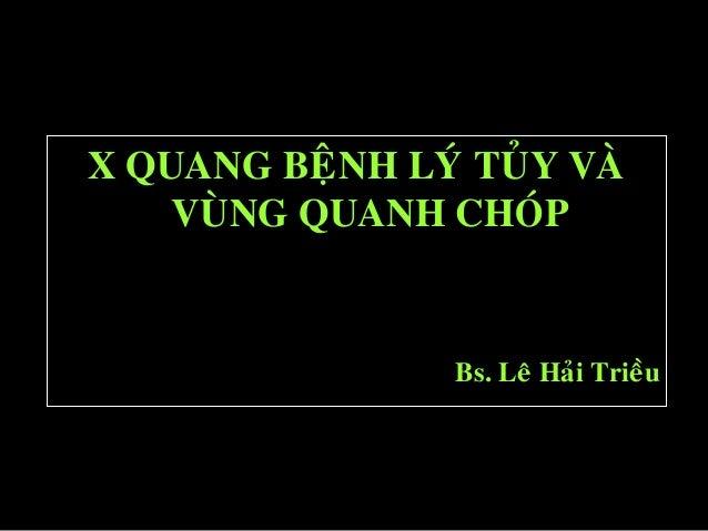X QUANG BEÄNH LYÙ TUÛY VAØ VUØNG QUANH CHOÙP Bs. Leâ Haûi Trieàu