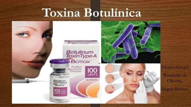 Toxina Botulínica Silvana Knopf; Wanderlei de Oliveira; Angela Benites.