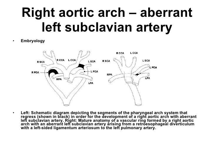 Right aortic arch – aberrant left subclavian artery <ul><li>Embryology </li></ul><ul><li>Left: Schematic diagram depicting...