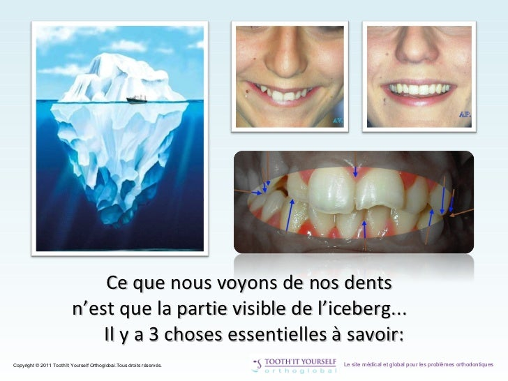 Tooth it Yourself | Informations Scientifiques Slide 3