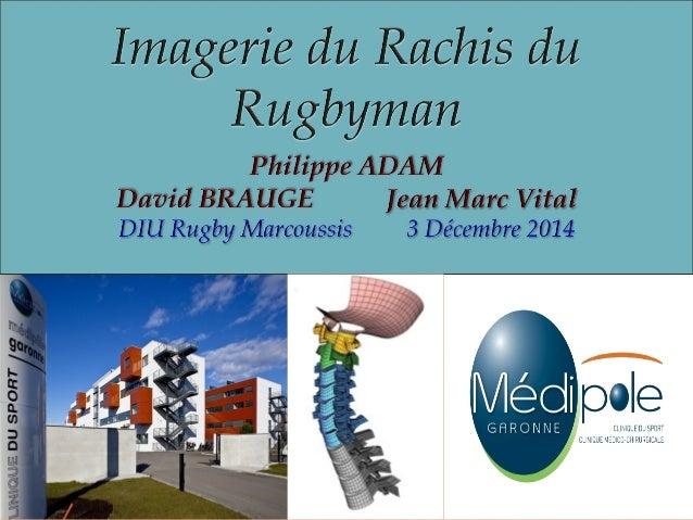 "L'imagerie rachidienne est influencée par le  morphotype (lean mass, fat mass, bone mass)  ""Are rugby players getting bigg..."