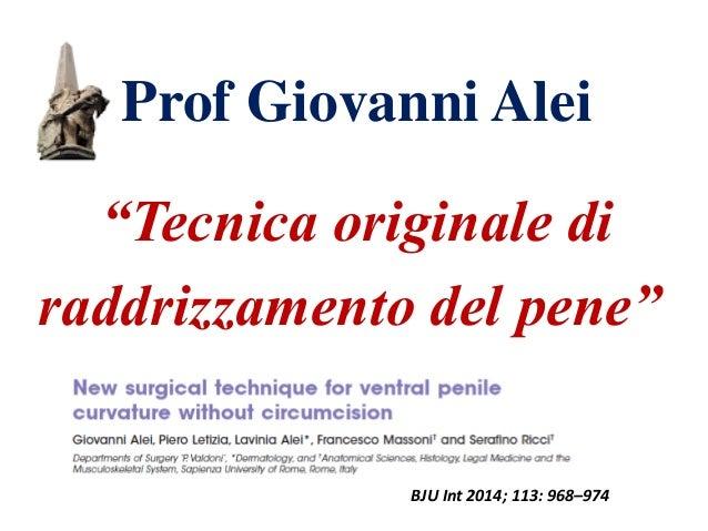 """Prof Giovanni Alei """"Tecnica originale di raddrizzamento del pene"""" BJU Int 2014; 113: 968–974"""