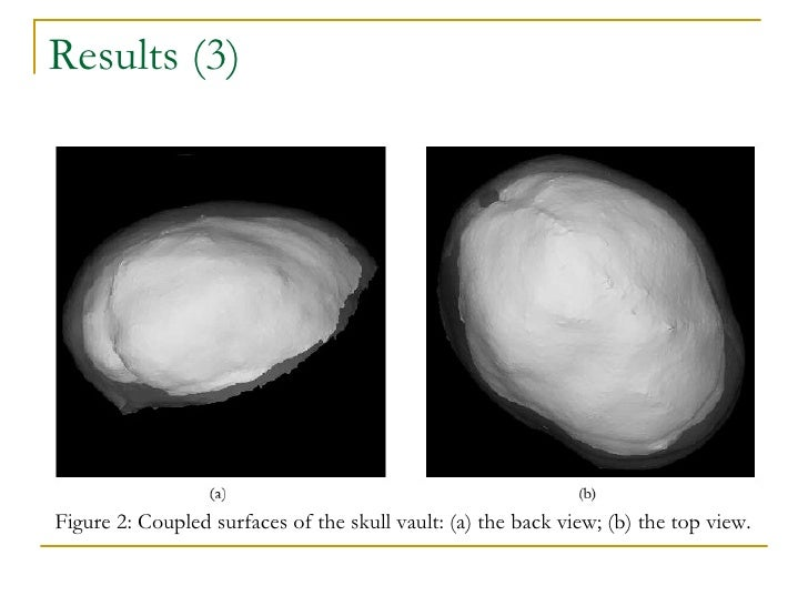 Results (3) Figure 2: Coupled surfaces of the skull vault: (a) the back view; (b) the top view.