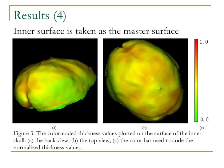 Results (4) Figure 3: The color-coded thickness values plotted on the surface of the inner skull: (a) the back view; (b)  ...