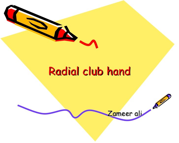 Radial club hand Zameer ali