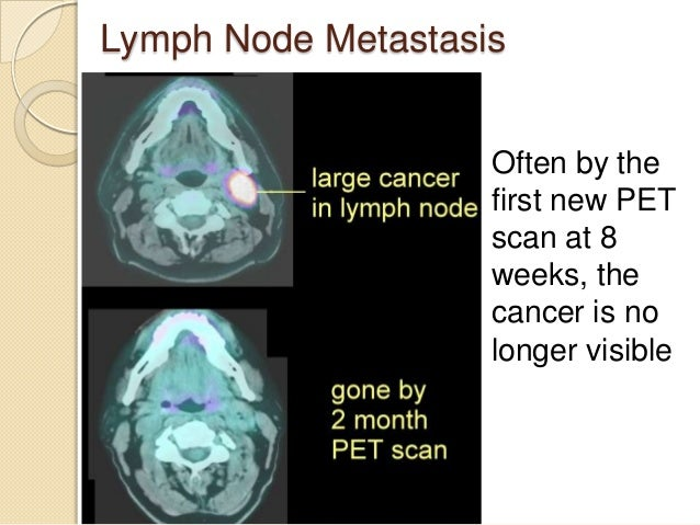 Radiation For Head And Neck Cancer Video