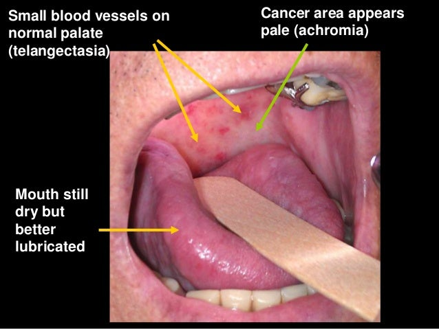 Samepatient At 2years /mouth Stilldry Andtaste Forfood Still Notnormal; 61.  Radiation Results For Cancer ...