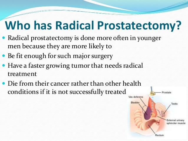 Open Radical Retropubic Prostatectomy Using High Anterior Release ...