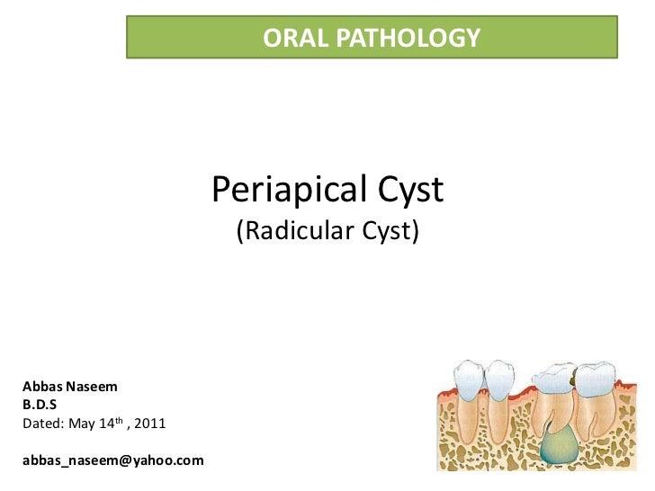 ORAL PATHOLOGY                         Periapical Cyst                          (Radicular Cyst)Abbas NaseemB.D.SDated: Ma...