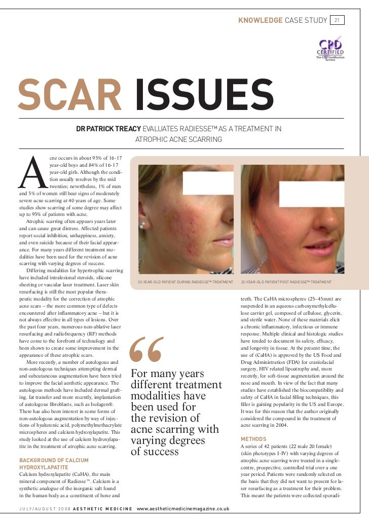 Image result for acne scarring patrick treacy