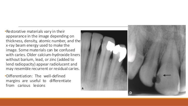 Without The Appearance Of Liner: Radiographic Of Interpretation Of Dental Caries