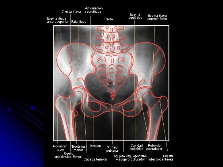 Radioanatomia de pelvis osea