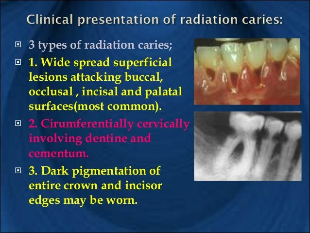 A. Daily application of 1% Na F gel topically. B) Reduce streptococcus mutans & Lactobacillus. C. Oral hygiene instruction...