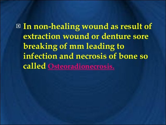 !  ! !  It is recommended to do extraction & alveolectomies 2 to 3 weeks before irradiation . This allow time for healing....