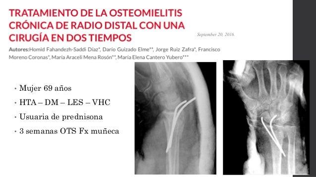 • Reintervensión con placa volar • Infección de herida operatoria al 3er día • Aseo quirúrgico y ATB según antibiograma  ...