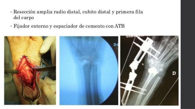 • 3 meses  Artrodesis definitiva con autoinjerto de cresta iliaca • Seguimiento 2 años  Sin dolor  Sin signos de infecc...