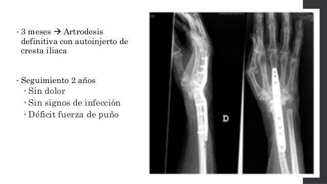 Cirugía en 2 tiempos: Artrodesis • Artrodesis definitiva  disminuye dolor • Varios procedimientos quirúrgicos • Menor com...