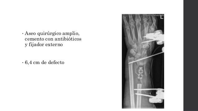 • 6 semanas  Tutor externo de transporte óseo • 1mm/día