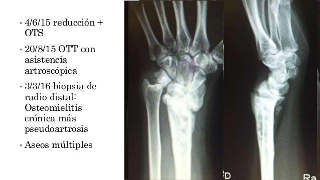 • 4/6/15 reducción + OTS • 20/8/15 OTT con asistencia artroscópica • 3/3/16 biopsia de radio distal: Osteomielitis crónica...