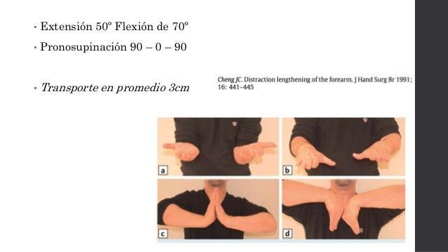 Trasporte Óseo • Reproducible • En promedio 3 cm de transporte • Tratamiento largo tiempo • Requiere de una articulación v...