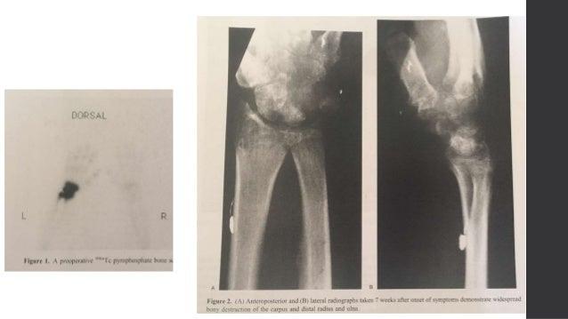 • 6 semanas post aseo • Injerto de fibula vascularizado  Anastomosis termino – terminal a A. Radial  Anticoagulación por...