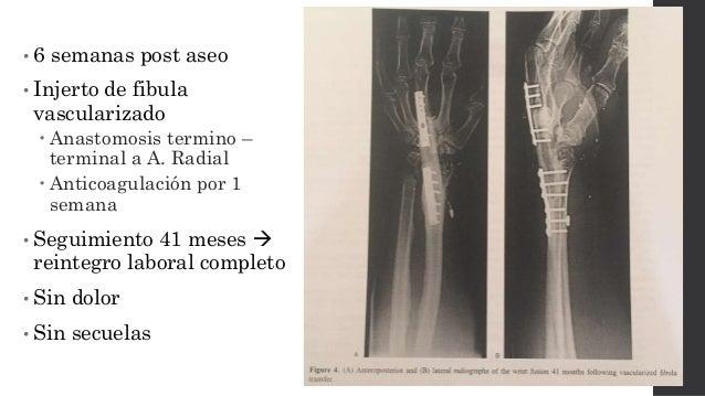 Injerto óseo pediculado de interóseo posterior.