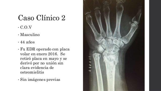 Caso Clínico 2 • C.O.V • Masculino • 44 años • Fx EDR operado con placa volar en enero 2016. Se retiró placa en mayo y se ...
