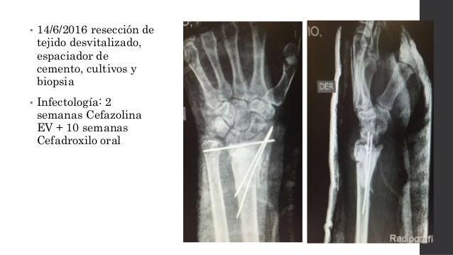 """≠ Osteomielitis en fractura de muñeca Complicación de la fractura de muñeca """"Infección"""" Infección superficial Infección as..."""