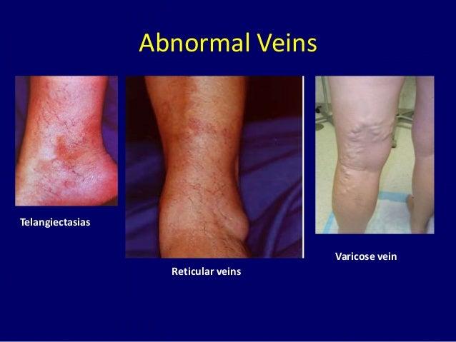Radiofrequency ablation of varicose veins Dr. Muhammad Bin Zulfiqar