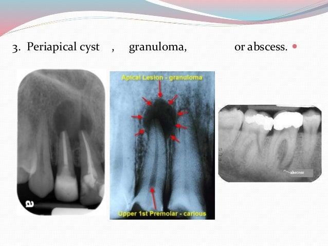 dental common disease on x
