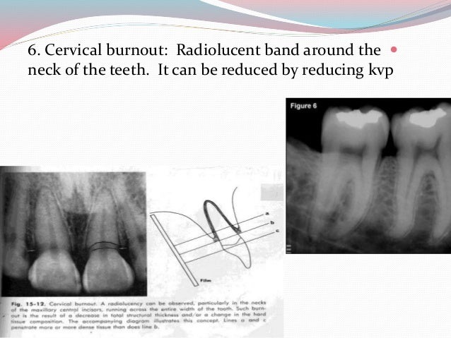 dental common disease on xray by drmohammad nameer
