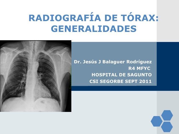 RADIOGRAFÍA DE TÓRAX: GENERALIDADES Dr. Jesús J Balaguer Rodríguez R4 MFYC  HOSPITAL DE SAGUNTO CSI SEGORBE SEPT 2011