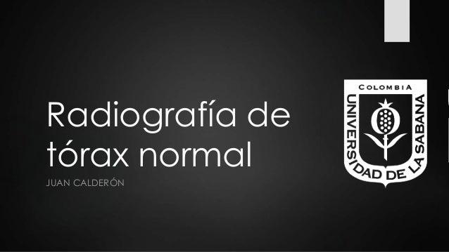 Radiografía de tórax normal JUAN CALDERÓN