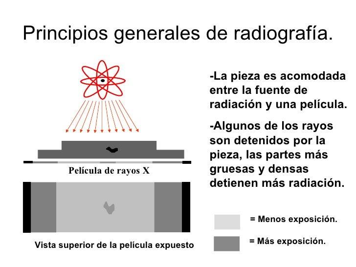Radiografía industrial final.
