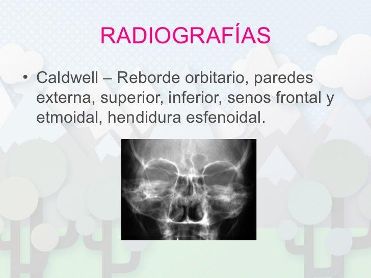 RADIOGRAFÍAS <ul><li>Caldwell – Reborde orbitario, paredes externa, superior, inferior, senos frontal y etmoidal, hendidur...