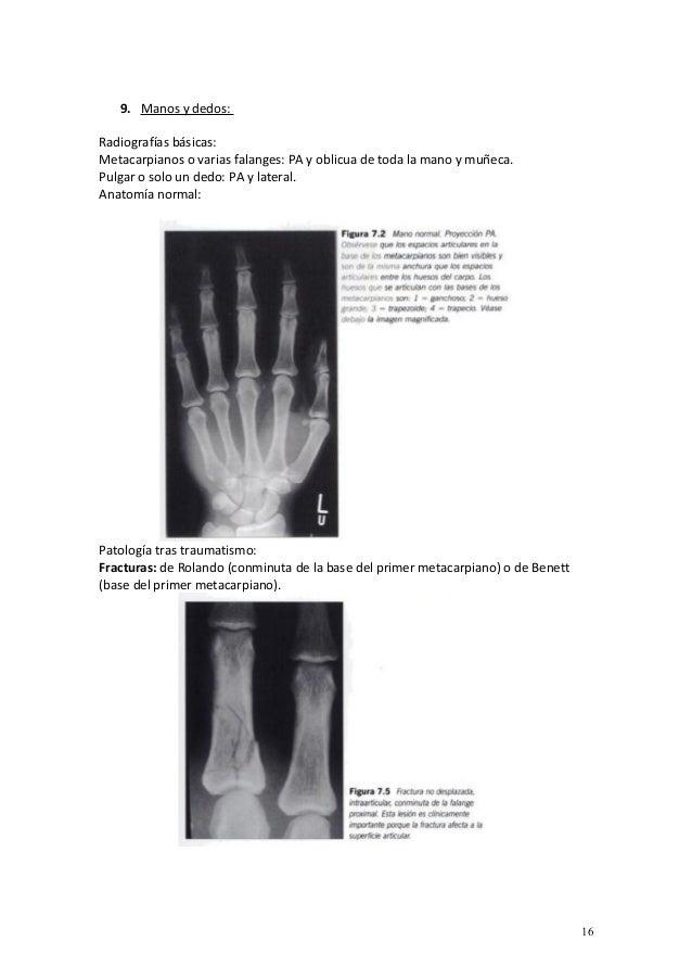 2016.03.31) Radiografia en atencion primaria (Parte 2) (DOC)