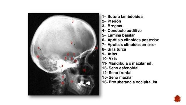 Radiografias de craneo & cara