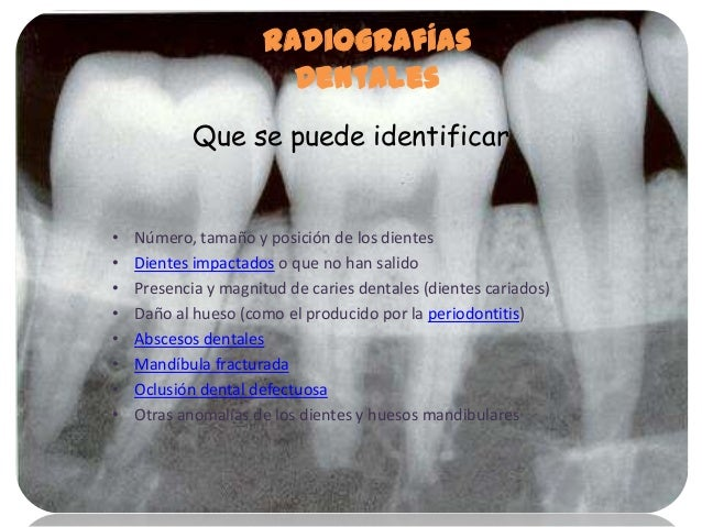 Radiografias power point for Numero de dientes