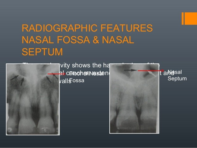 Radiographic anatomical landmarks by dr armaan singh for Floor of nasal cavity
