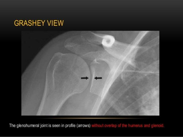 Radiographic evaluation of shoulder