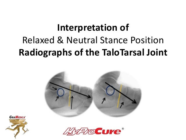 Interpretation of Relaxed & Neutral Stance Position Radiographs of the TaloTarsal Joint