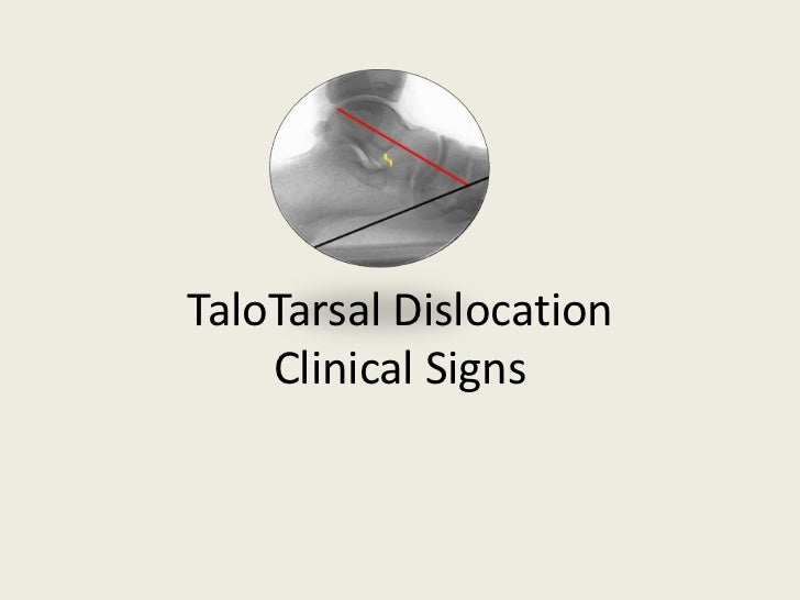Radiographic Evidence of TaloTarsal Dislocation<br />Michael E. Graham, DPM, FACFAS, FASPS, FAENS<br />