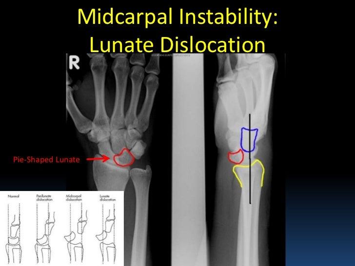 Radiographic Msk Anatomy