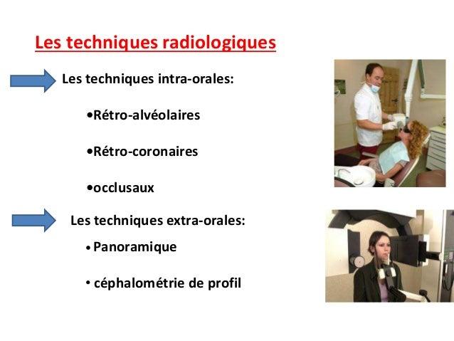 Les techniques radiologiques Les techniques intra-orales: •Rétro-alvéolaires •Rétro-coronaires •occlusaux Les techniques e...