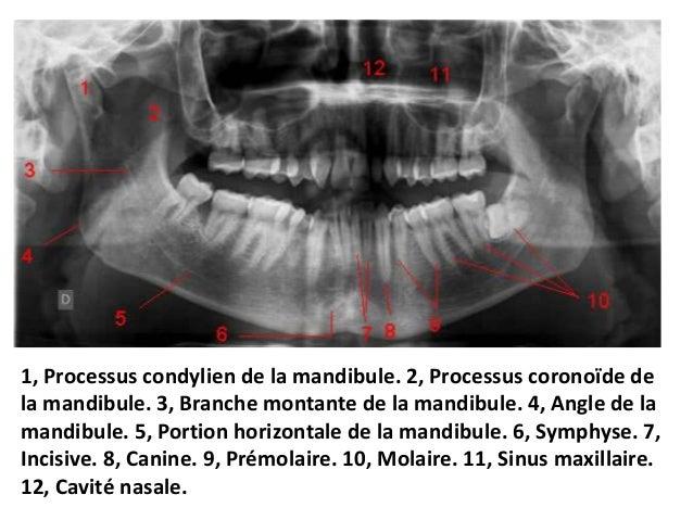 Anatomie normale. 4. corps dédoublé de l'os hyoïde ; 5. canal mandibulaire ;  6.trou mentonnier ; 7. rebord inférieur d...