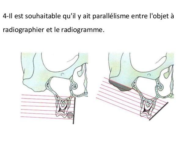 Le radiogramme est placé parallèlement avec l'axe longitudinal des dents. Le rayon central du faisceau des rayons X est di...